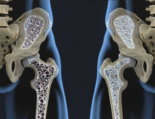 Simple Tips To Reverse Osteoporosis